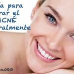 Guia para curar el acné naturalmente y sin químicos