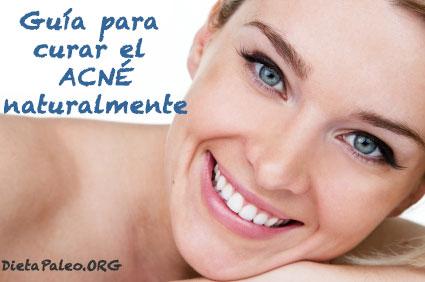 Guia-para-curar-el-acne-naturalmente